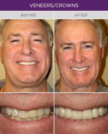 Artisan Family Dentistry - Dental Veneers and Crowns