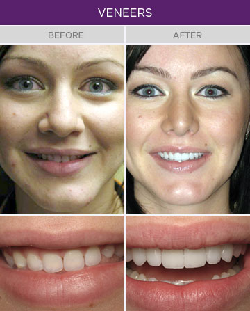 Artisan Family Dentistry - Veneers