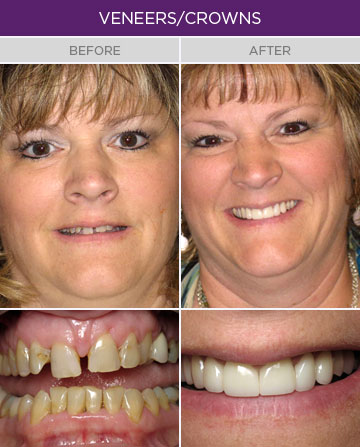 Artisan Family Dentistry - Veneers and Crowns