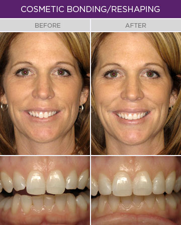 Artisan Family Dentistry - Cosmetic Bonding or Reshaping