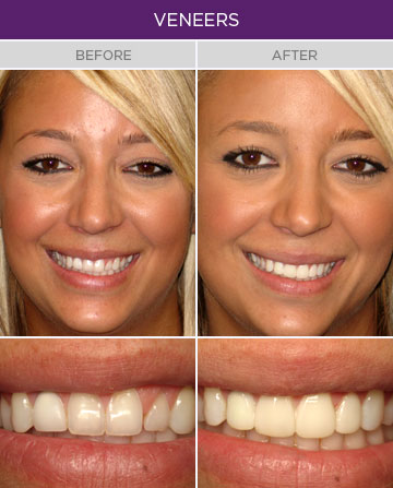 Artisan Family Dentistry - Dental Veneers