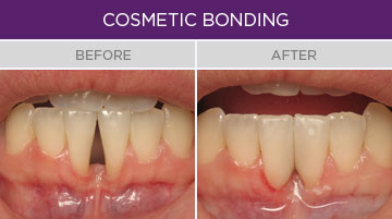 Artisan Family Dentistry - Cosmetic Bonding